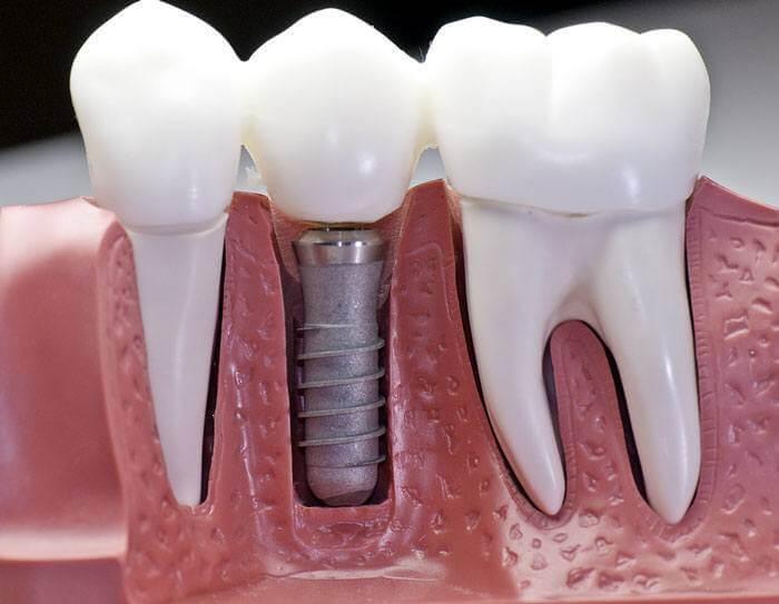 Implantes odontológicos: la mejor solución para remplazar un diente