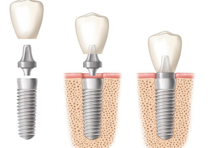 Puesta-Implante-Estético
