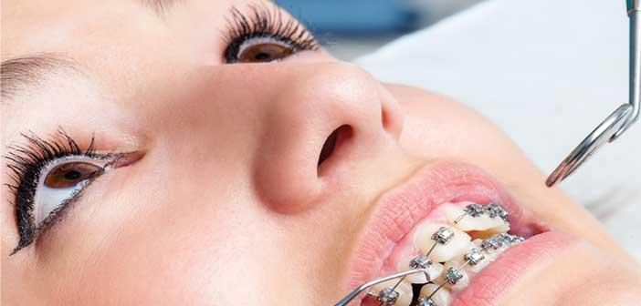 Brackets y Tratamientos de Ortodoncia