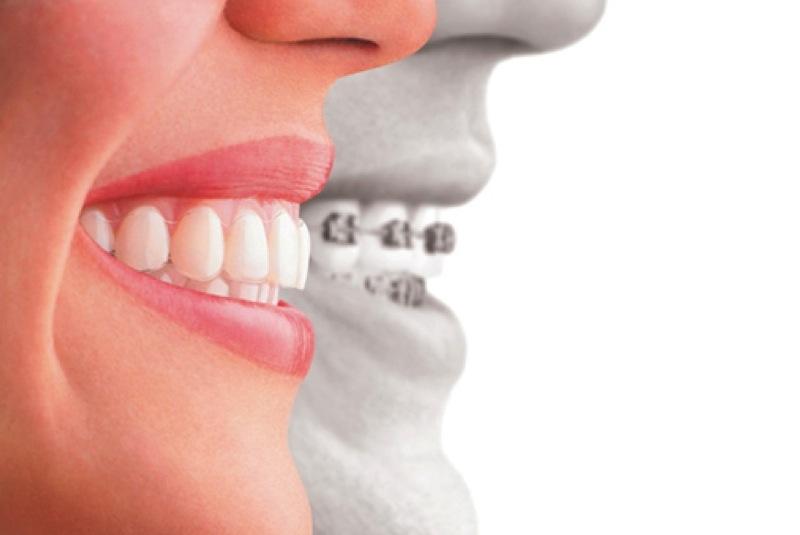 Obras sociales y prepagas que cubren la Ortodoncia