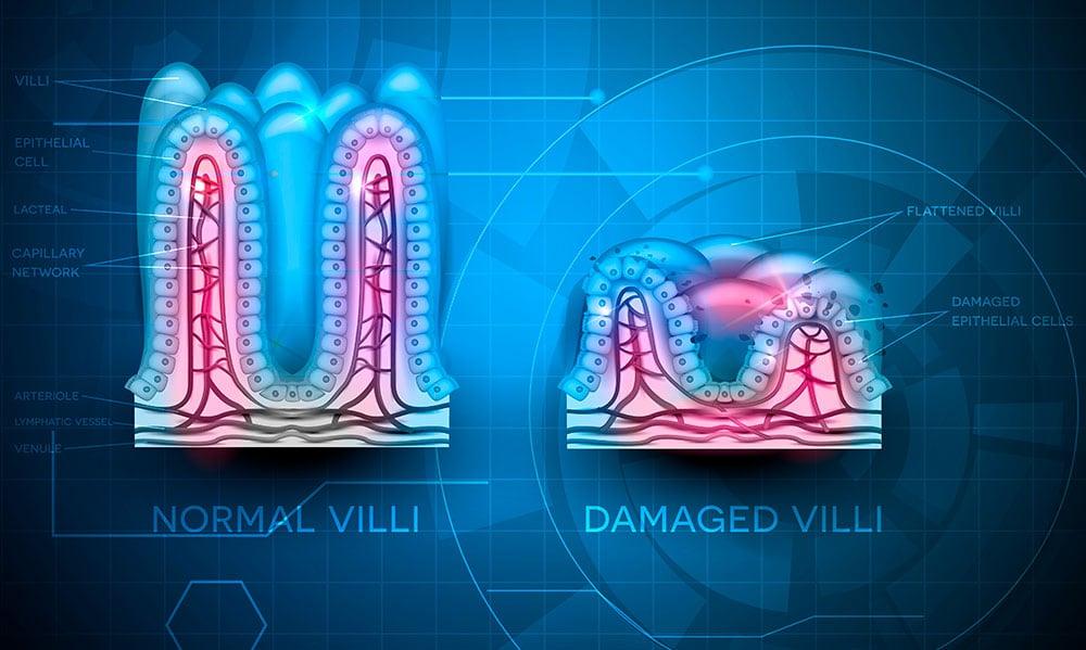 Celiaquia-Lesion-Celulas