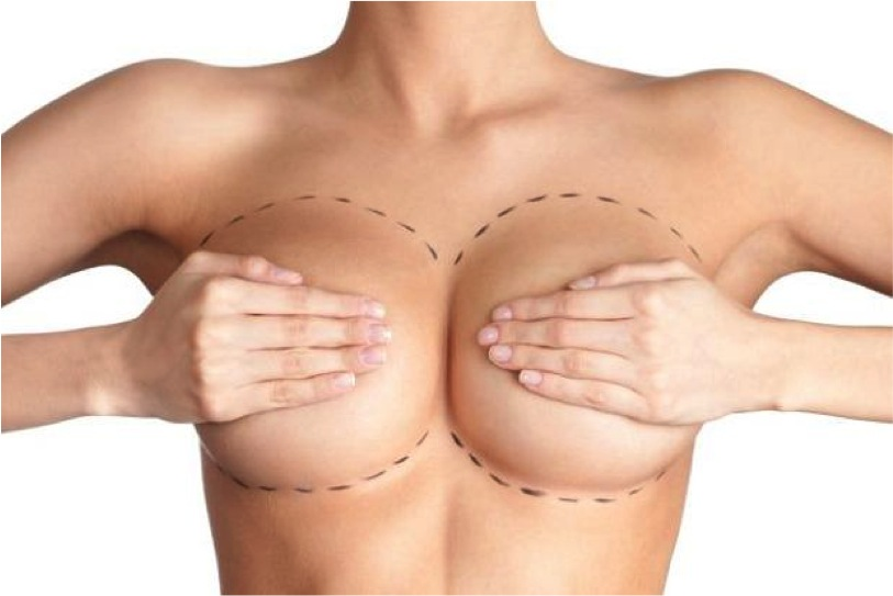 ¿Qué prepagas cubren cirugías estéticas?