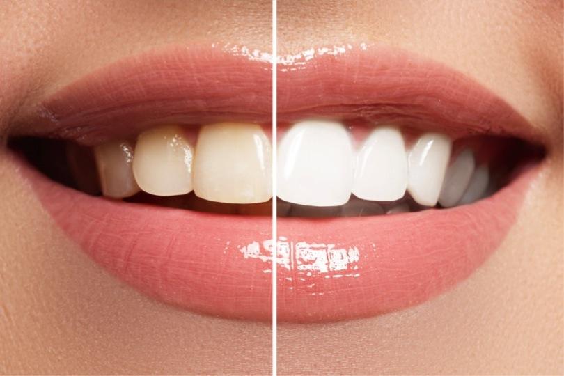 Blanqueamiento Dental: Características y Cobertura